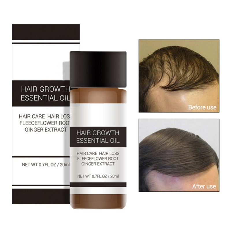 Hair Growth Essence Fast Powerful Products Essential Oil Liquid Treatment Preven