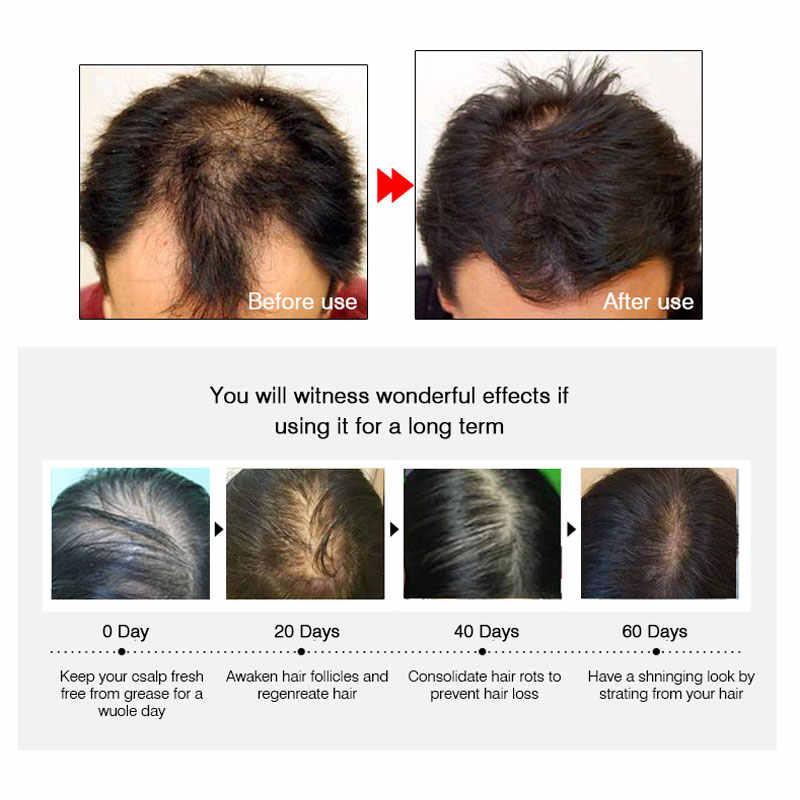 ARTISCARE Haar Wachstum Essenz Schnelle Leistungsstarke 20 ml Produkte Ätherisches Öl Flüssigkeit Behandlung Gegen Haarausfall Haarpflege Andrea