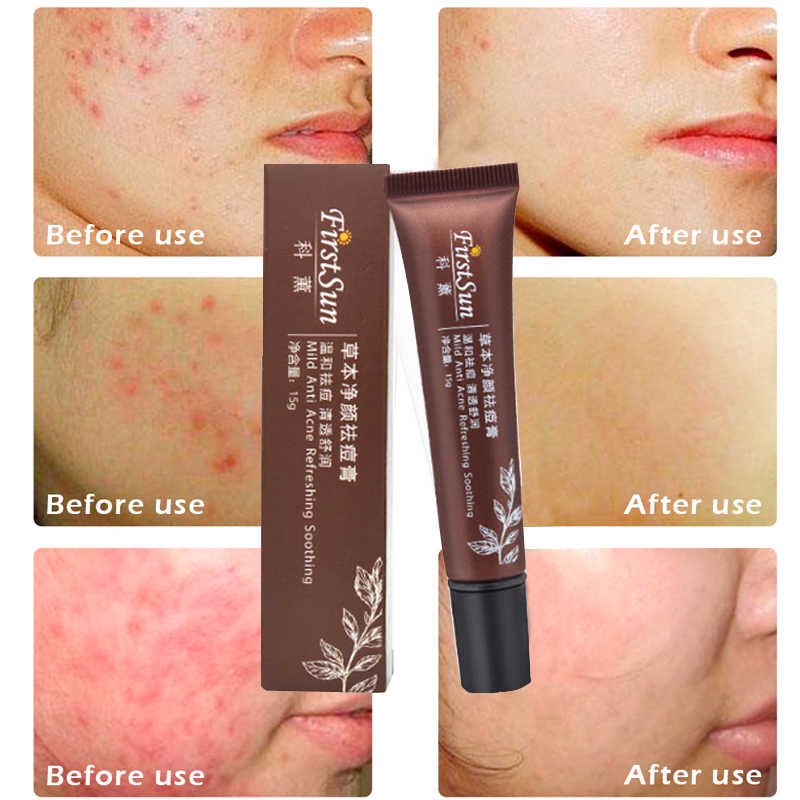 15ml Anti acne scar removal cream age spots whitening anti wrinkle cream  for acne treatment narrowing the pore skin tightening