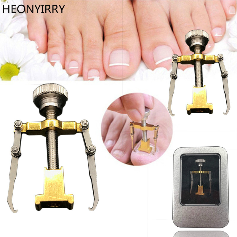 Ingrown Toenails Pedicure Foot Nail Care Værktøj File for Feet Orthotic Acronyx Ingrowing Nail Onyxis Bunion Corrector for Toes