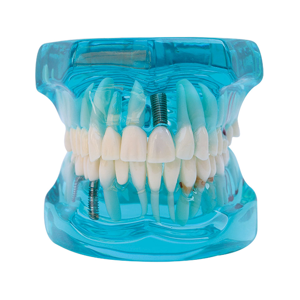 1pcs Dental Model Showing Restoration and Implant for Dentist for Medical Teaching