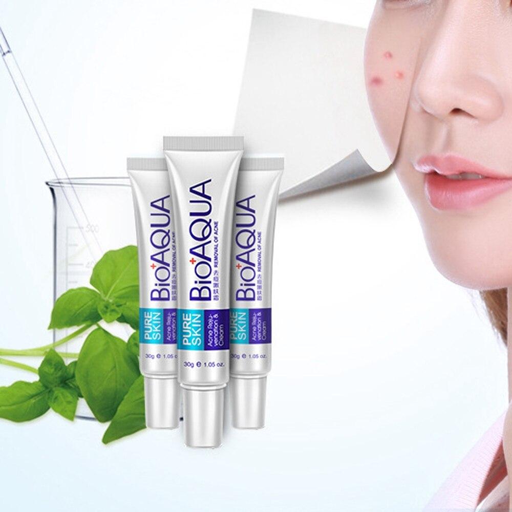 BIOAQUA Anti Acne Cream Treatment  Scar Removal Gel Whitening Moisturizing Essence Mark Whitening Cream Shrink Pores Skin Care