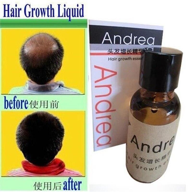 Andrea Growth Anti Hair Loss Liquid 20ml Dense Fast Sunburst Growth Grow Invalid Refund Alopecia