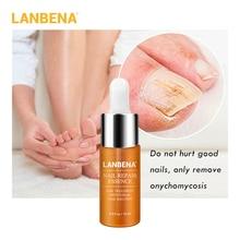 LANBENA Nail Repair Essence Serum Fungal Nail Treatment Remove Onychomycosis Toe Nail Nourishing Brightening Hand And Foot Care