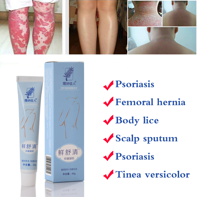 29A Natural Cream Works Really Well For Psoriasi Eczma Skin CARE With Gift (omly For 11.11)