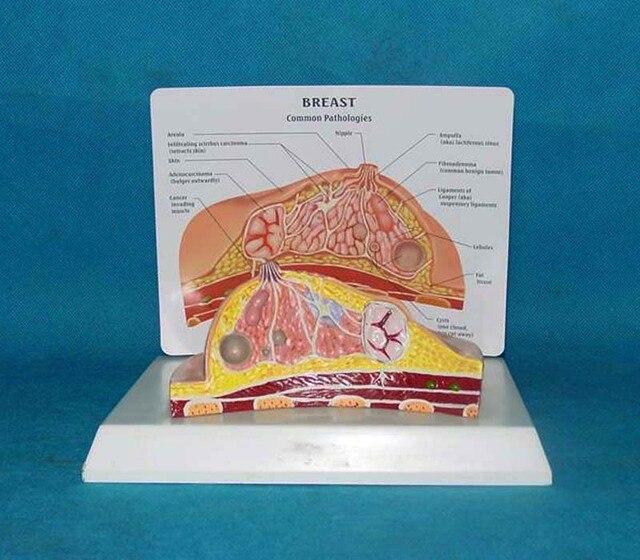 Breast Anatomy Diseased Breast Model Model Shows The Anatomy Of