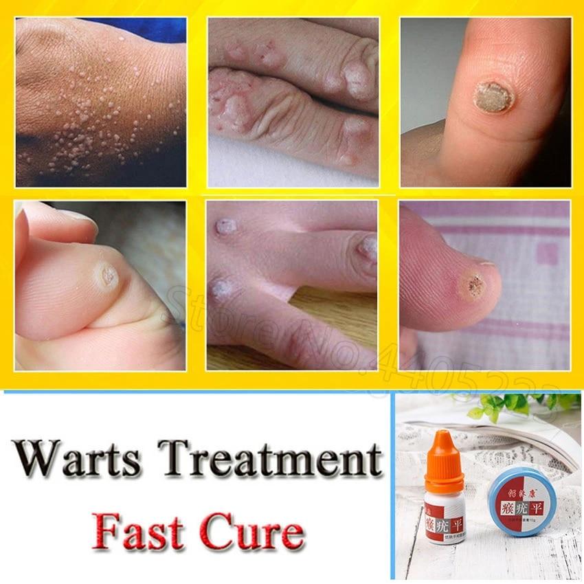 wart foot cream)