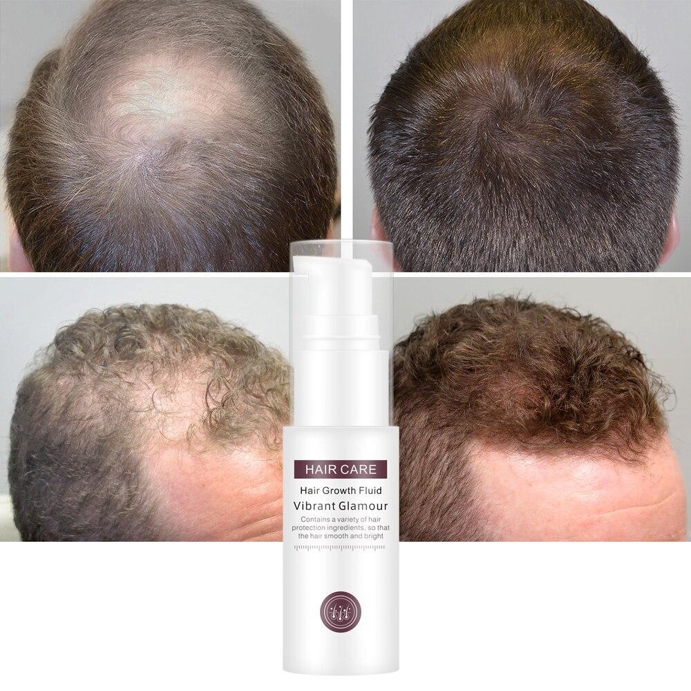 VIBRANT GLAMOUR Hair Growth Spray Serum Essential Oil Nourish Scalp Hair Roots Prevent Hair Loss Clean Scalp Grease Hair Care 1