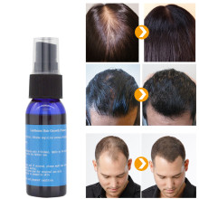 Y & W & F צמיחה מהירה 30ml yuda pilatory ספריי נגד קרחת שיער טיפול נשירת שיער טיפול שמן זקן גדל שיער פנים