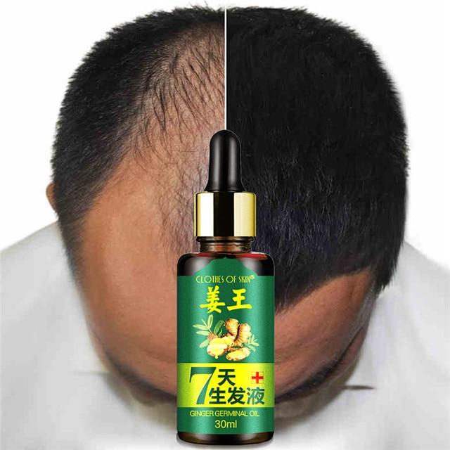 Crecimiento del cabello esencia líquido rápido crecimiento del cabello tratamiento de pérdida de cabello Natural