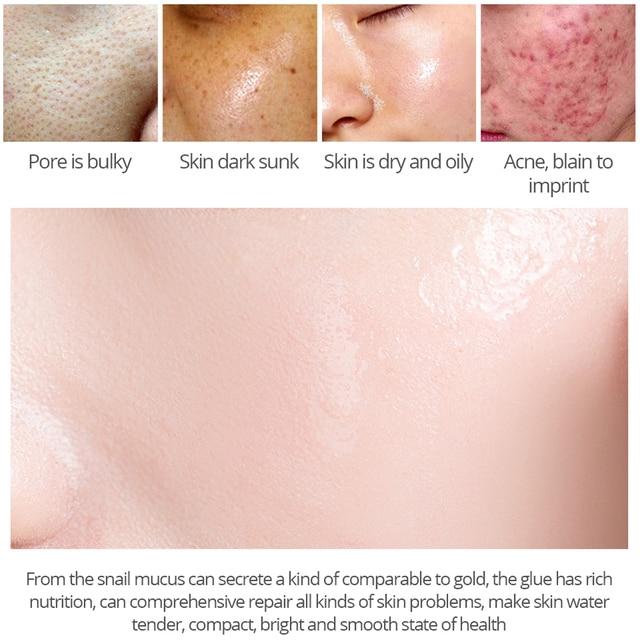Argireline Hyaluronic Acid Face Serum Snail Serum Anti-wrinkle Serum Anti Acne Moisturizing Essence Skin Care Set VIBRANTGLAMOUR