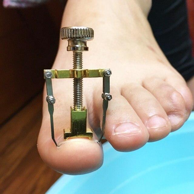 Pedicure Foot Care Tool Ingrown Toe Nail Corrector Professional ...
