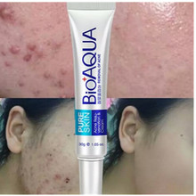 купить 1pc Skin Care 30g Acne Treatment Blackhead Remova Anti Acne Cream Oil Control Shrink Pores Acne Scar Remove Face Care Whitening дешево