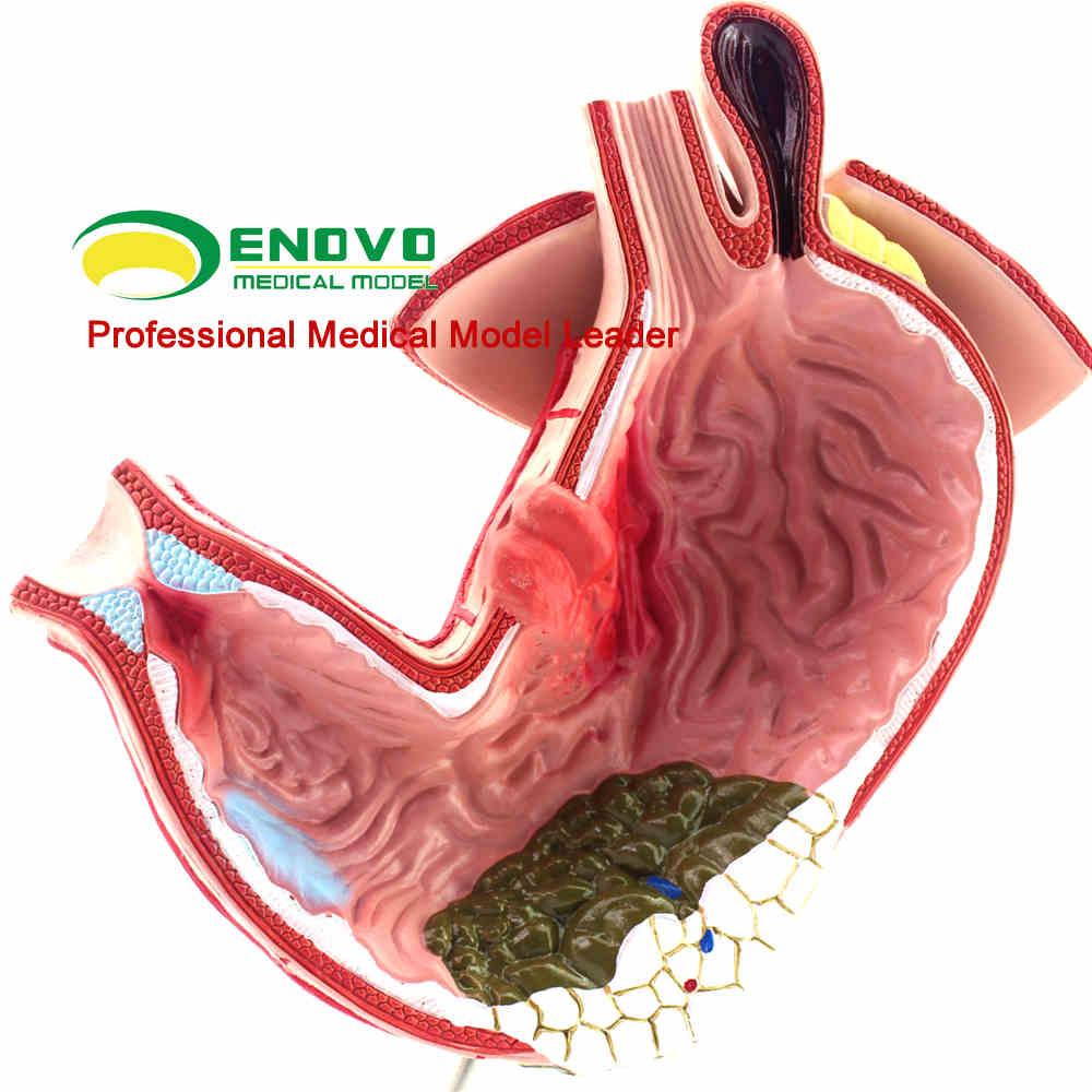 Stichwort: verdauungssystem; menschliches magen; verdauungssystem ...