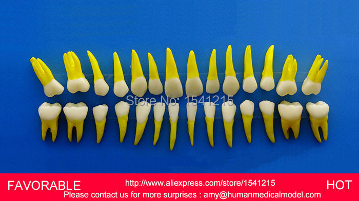 DENTAL CARIES MODEL,DENTAL DENTAL MODEL ,DENTAL CAST MODEL FOR DEPARTMENT ,PROPORTIONAL SIMULATION MODEL TEETH-GASEN-DEN033 tooth caries model oral training model dental cast model removable transparent dental model dentition gasen den039