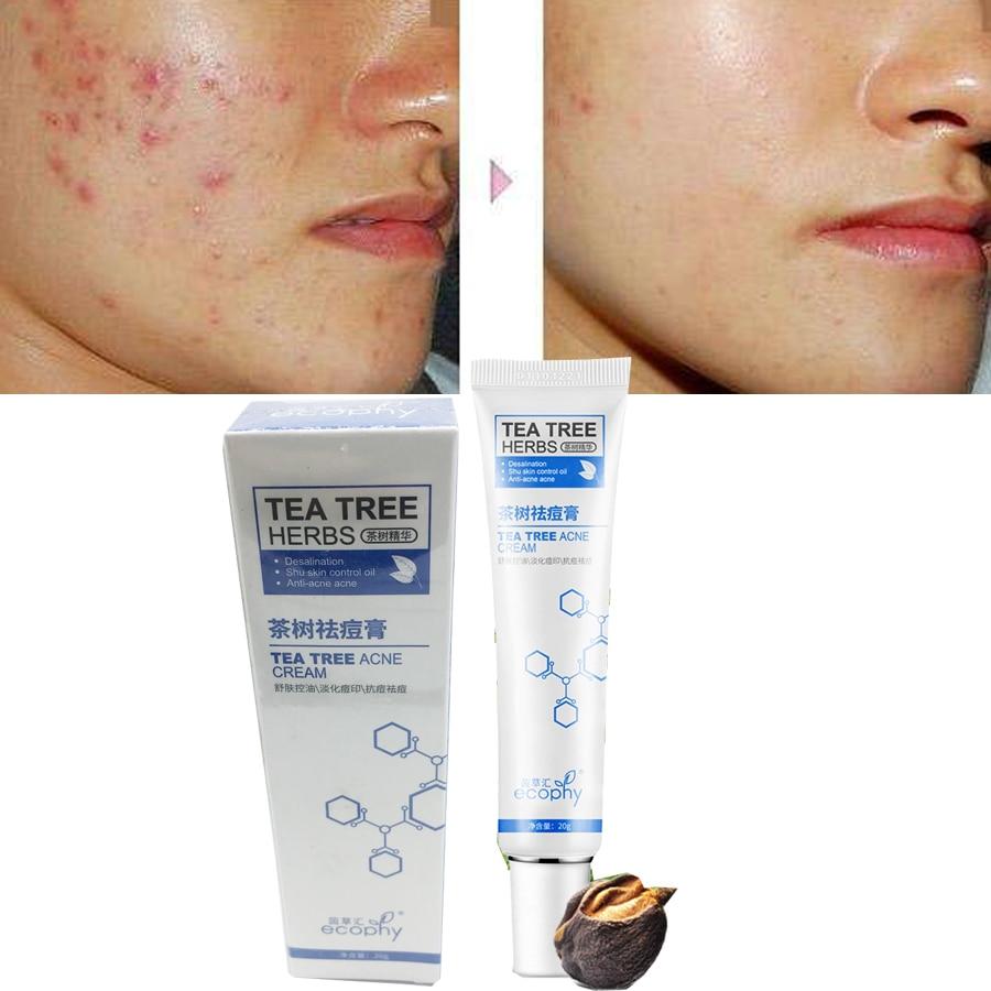 Tea Tree Extract Against Black Dots Face Cream Scar