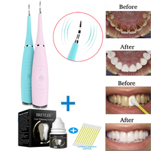 Portable Electric Sonic Dental Scaler Tooth Calculus Remover Tooth Stains Tartar Tool Toothwash Dentist for Beauty Teeth