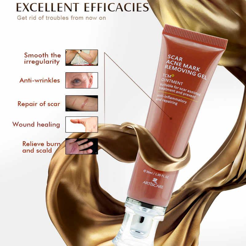 ARTISCARE Narbe Akne Mark Entfernen Gel TCM Mitesser Behandlung Reparatur Haut Bleaching Glatte Weiches Gesicht Creme Hautpflege Ginseng Tee
