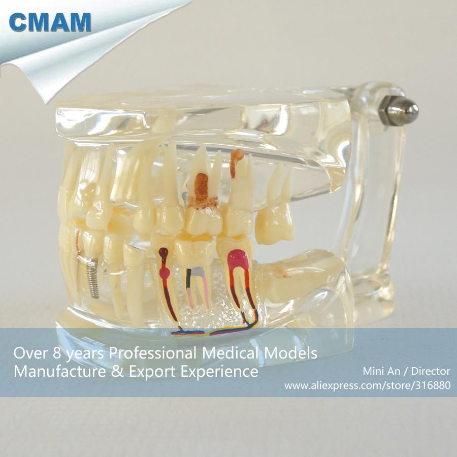 ФОТО CMAM-DH310 Transparent Dental Jaw Model with Half Pathology Model