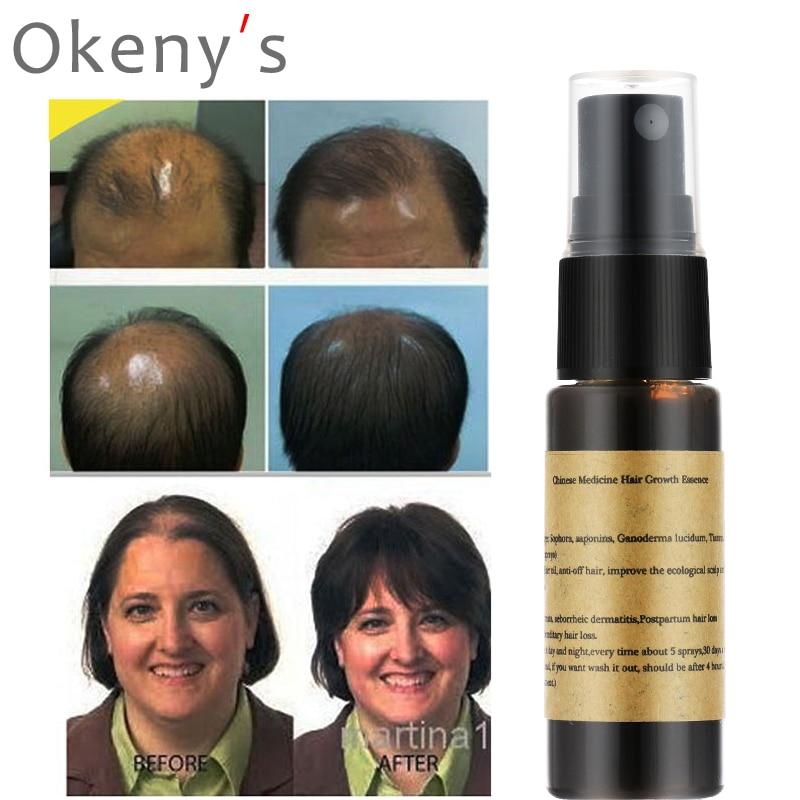 Organic Fast Hair Growth Essence Liquid 20m Products Yuda Pilatory Anti Gray Hair Spray Shampoo Serum Hair Loss Treatment