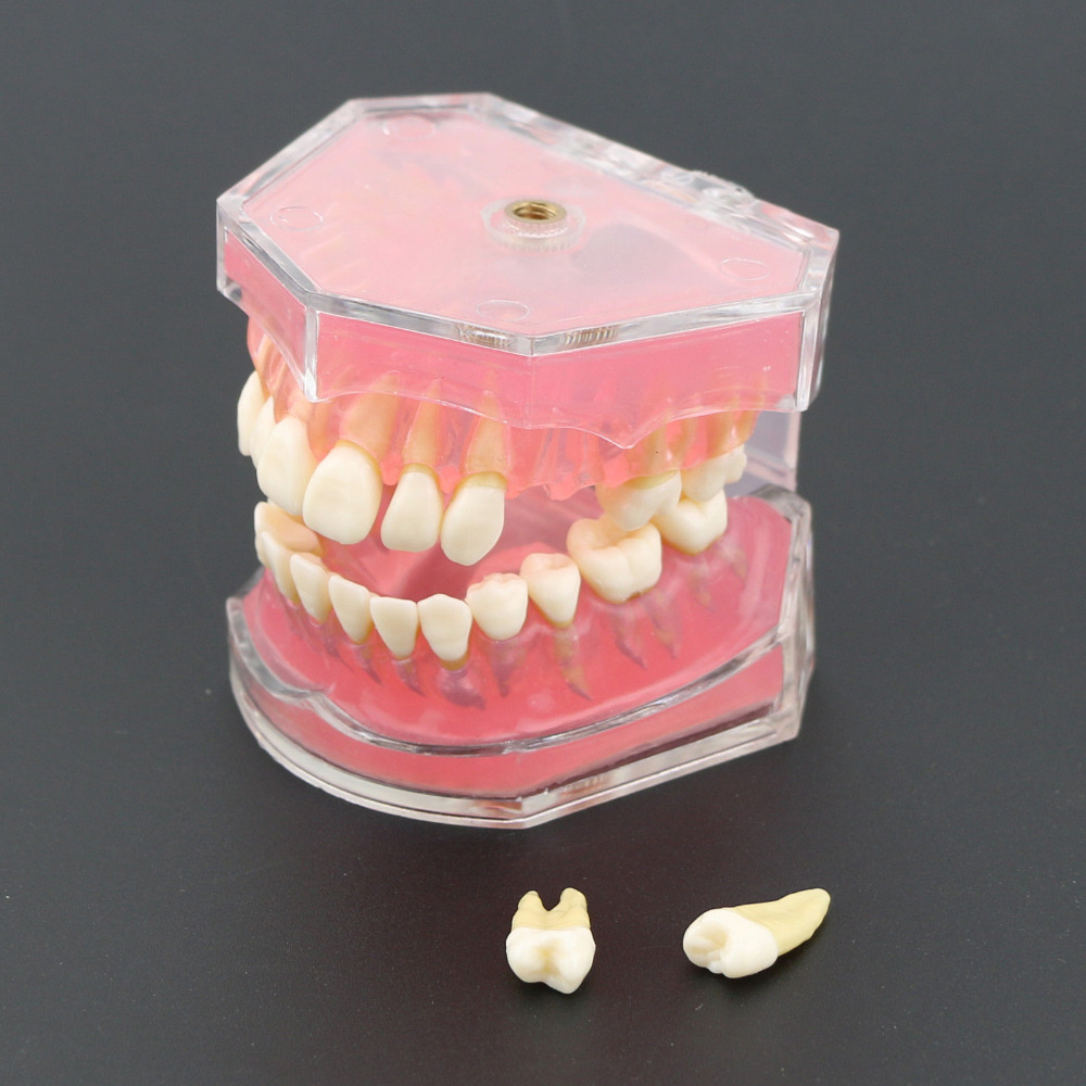 Dental  Standard Model With Removable Teeth #4004 01 Dental Study Teach Teeth Model
