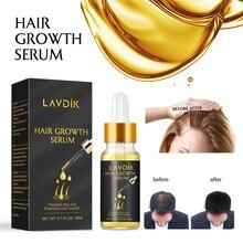 LAVDIK Ginger Fast Hair Growth Serum Essential Oil