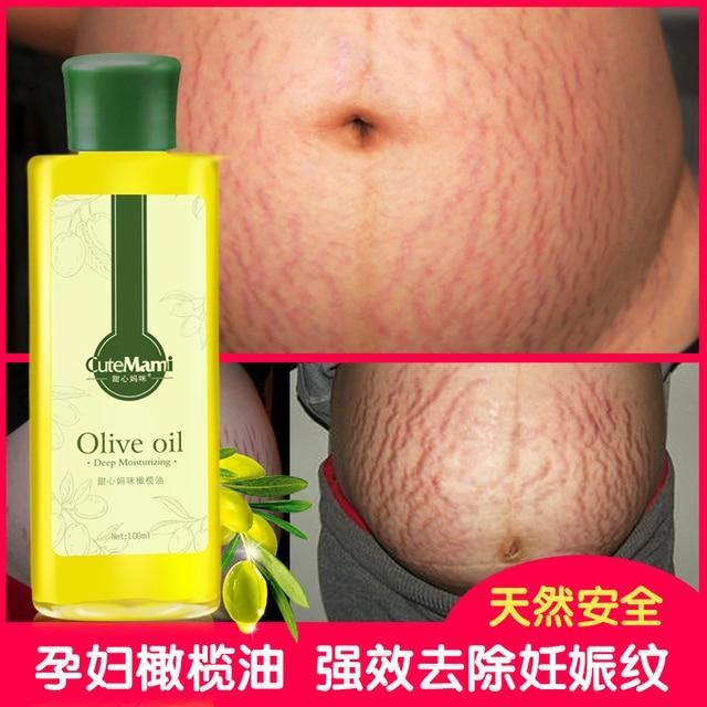 בלתי רגיל יולדות לטיפול בעור שמן זית יופי לחות עמוקה קרם צלקת הסרה סימני JH-41