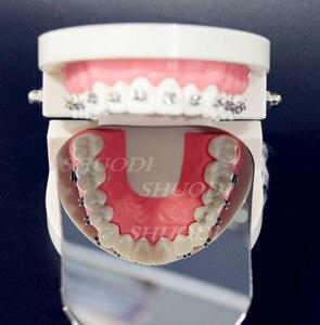 Image 2 - Hai Bên Nha Khoa Chỉnh Nha/làm trắng răng Autoclavable Nha Khoa Chăm Sóc Răng Miệng Chụp Ảnh Tráng Gương Phản Quang Hai Mặt