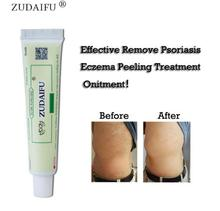 ZUDAIFU + 2 petits emballages de crème pour la peau, produits de soins pour la peau, ont une peau saine et améliorent la vie sexuelle, sans boîte de vente au détail, 5 pièces/3 pièces