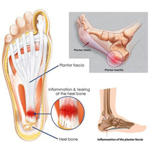 1 шт. Регулируемый подошвенный фасцит ночной шины спортивный болт на ноге опора для брекета поддержк