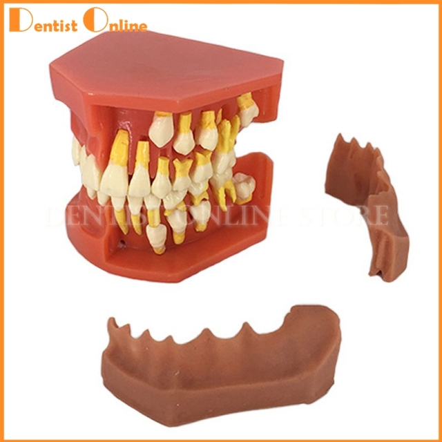 US $42 75 5% OFF|Aliexpress com : Buy Children Permanent Tooth Model  Alternative Teeth Deciduous Model Removable Demonstration For Kids Studying