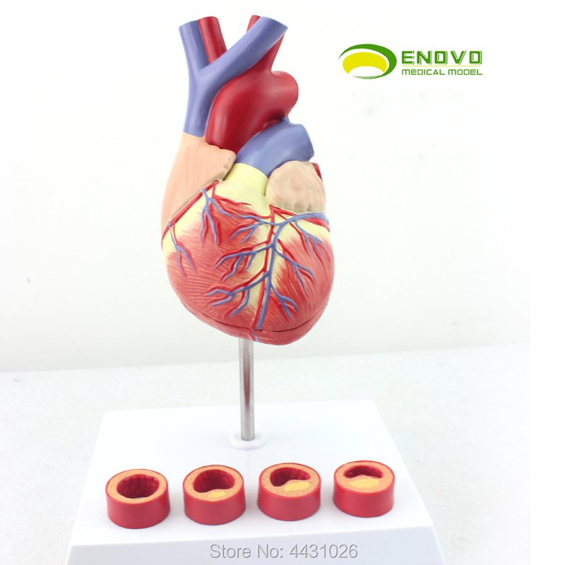 ENOVO 1-1 medical human heart model coronary thrombosis cardiology teaching arteriosclerosis anatomic heart model process model medical model of lipid cholesterol age model coronary heart disease thrombosis gasen xz011