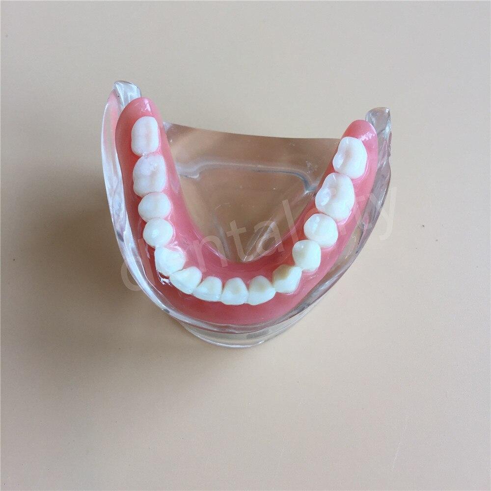 Modèle dentaire avec 4 prothèses d'implant modèle d'étude de dents de démonstration inférieur 6002