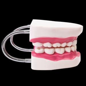 Image 2 - 6 פעמים שיניים שיניים למבוגרים דגם אוראלי מודלים שן עם לשון לגן ילדים ילד מוקדם הוראה מחקר אספקת שירותי בריאות