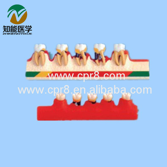BIX - L1010 Periodontal Disease Classification Model Dental Model MQ151 resin oral periodontal disease classification model gingivitis degree chronic periodontitis model