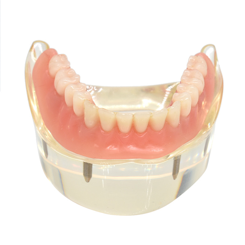 Dental Overdenture Teeth Model Removable Interior Mandibular Lower Teeth Model Mandibular with Implant for Tooth Teaching Study