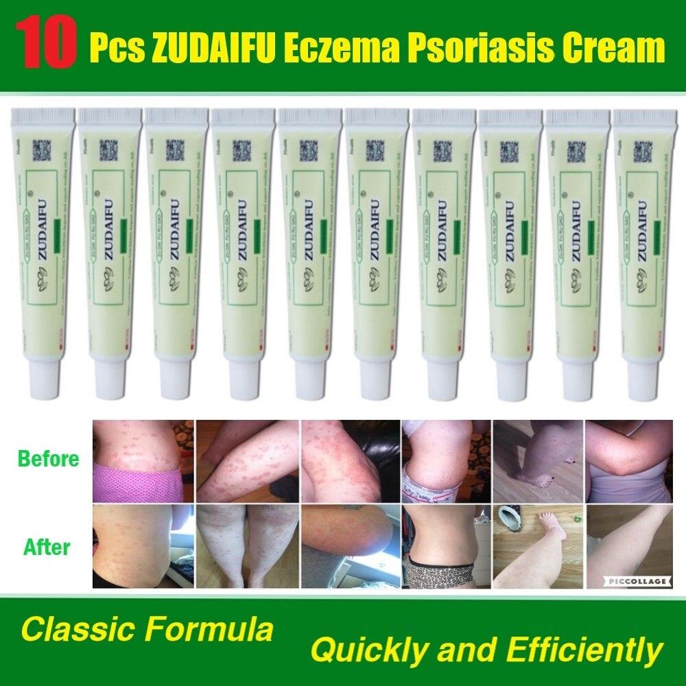 10Pcs ZuDaiFu Psoríase Creme Eczematoid Dermatite Eczema Tratamento Pomada Psoríase Creme Cuidados Com A Pele Atacado