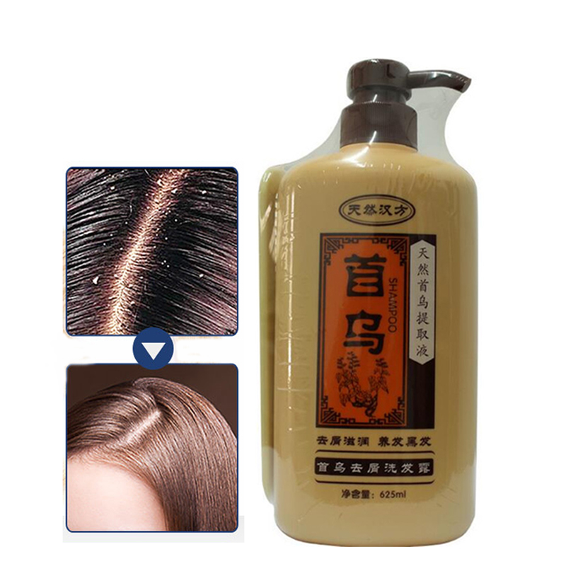 Professional Natural Chinese Medicine Extract Hair Shampoo Nourishing Anti Hair Loss Dandruff Shampoo Hair Care Products 625ML