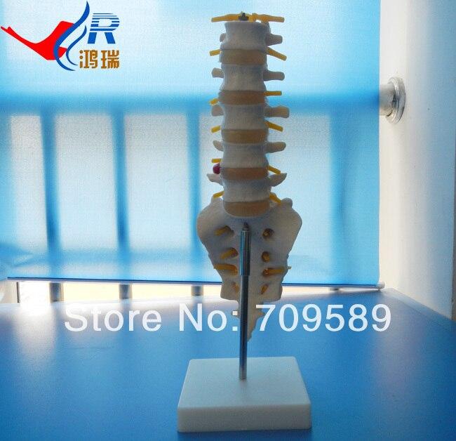 Plastic Lumbar Vertebrae and caudal vertebra Model normal lumbar set lumbar vertebrae 2pcs 3pcs 4pcs bix a1010 g162