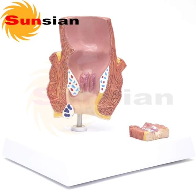 The Model Of Hemorrhoids Anatomical Modelanatomy Modelanatomia In
