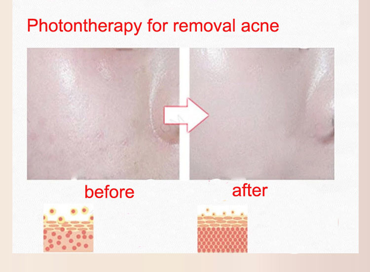 removal acne