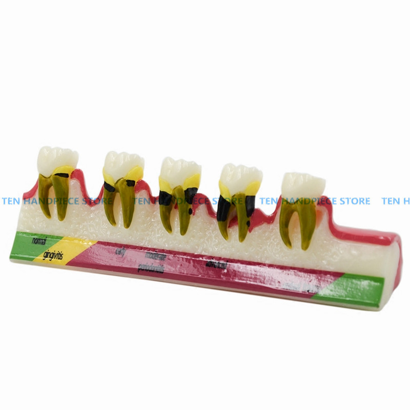 2018 good quality Dental Periodontal Disease assort Teeth Dentoform Typodont Study Teaching Model effect of dental implant abutment connections on periodontal tissues