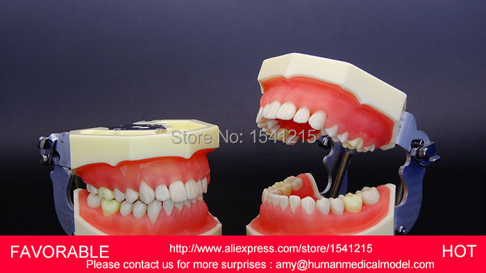 DENTAL TOOTH TEETH ANATOMICAL ANATOMY MODEL   HUMAN NATURAL SIZE DENTAL MODEL,DENTITION MODEL, TEETH DENTAL MODELGASEN-DEN011 dental pathology model anatomical model teeth model dental caries periodontal disease demonstration model gasen den050
