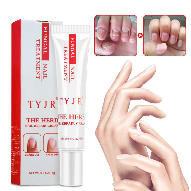 Detail Feedback Questions about Best Fungus Nail Treatment Cream ...