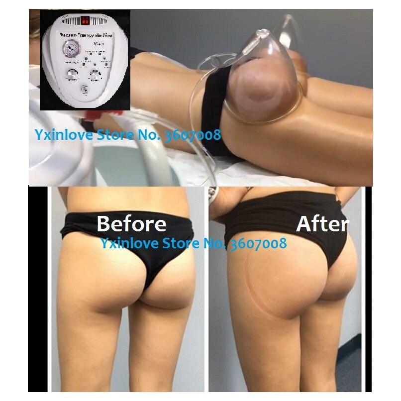 lift buttocks