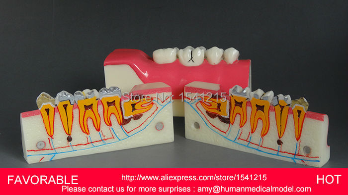 DENTAL PATHOLOGY MODEL ANATOMICAL MODEL TEETH MODEL DENTAL ,AFTER THE LOWER RIGHT TOOTH DENTAL TISSUE DECOMPOSITION MODEL-DEN052 transparent dental pathology model dental care model