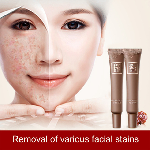 Facial age spot removal are not