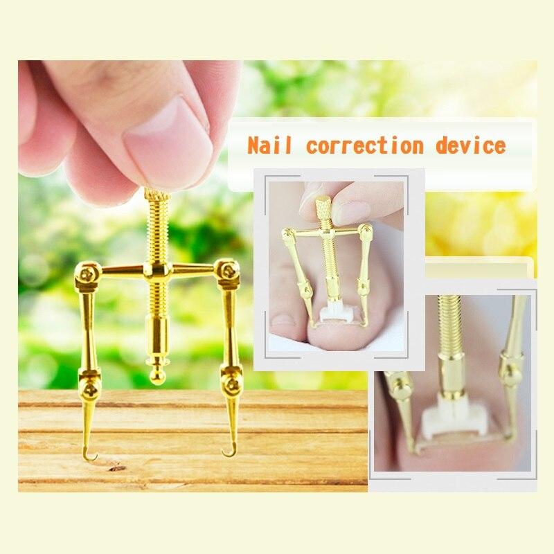 Nail Treatment nail correction device