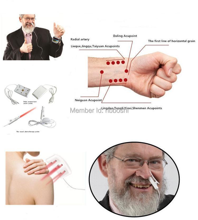 Puntos de acupresión disponibles para la presión arterial alta