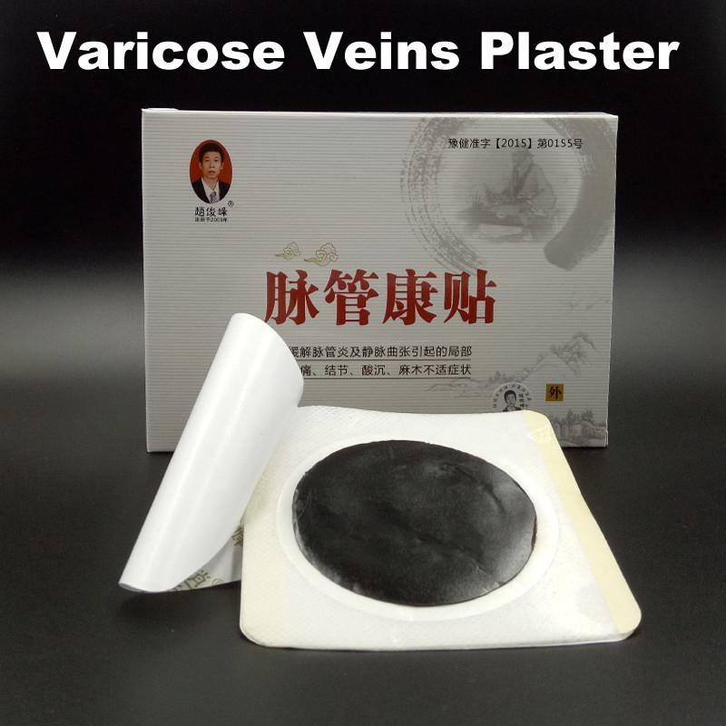 varicose veins (1)